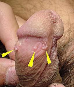 condyrom1